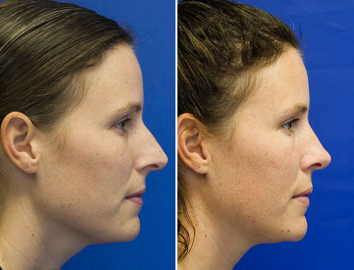 Patient 8 long over-projected nose profile