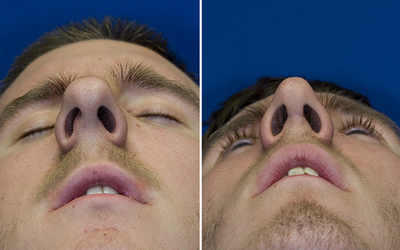 deviated septum surgery cost - 784×490