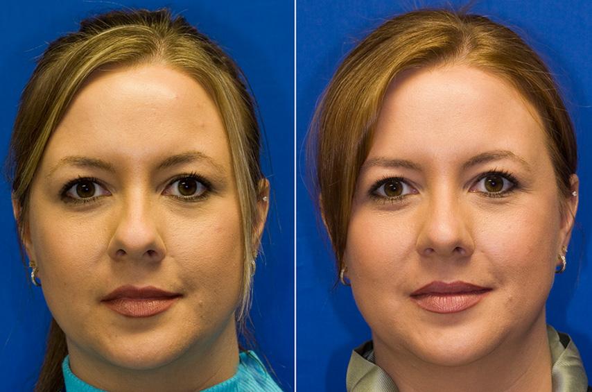 Bulbous nasal tip repair frontal view