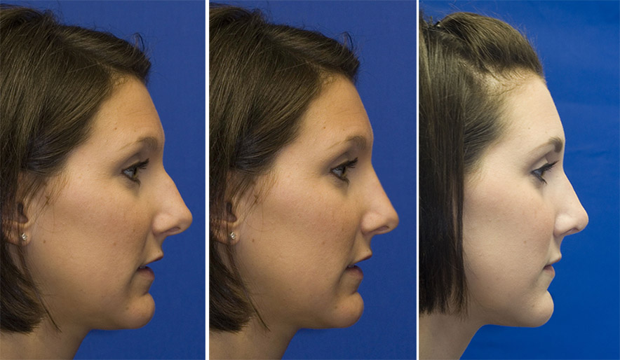 Patient 3 profile hump reduction