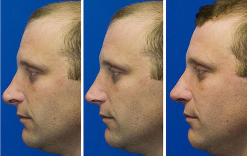 Revision rhinoplasty patient 4. Middle pane shows Dr. Lamperti's preoperative morphing simulation
