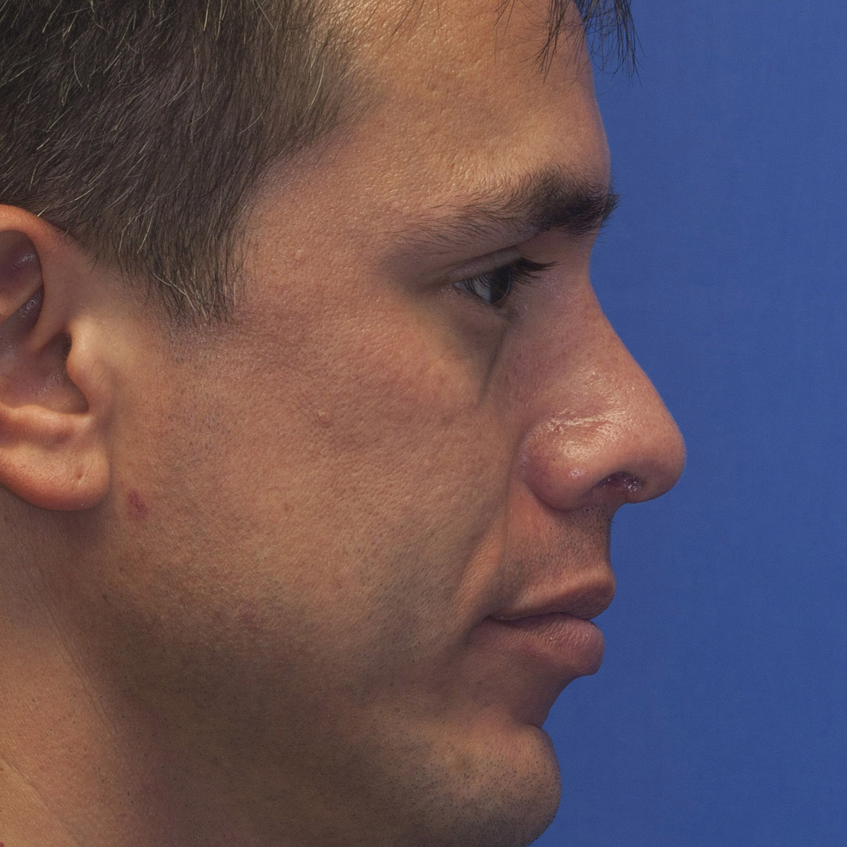 Revision rhinoplasty showing treatment of pollybeak deformity using cartilage grafting