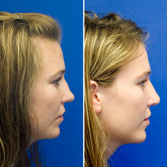 Post-traumatic saddle nose deformity before and after repair