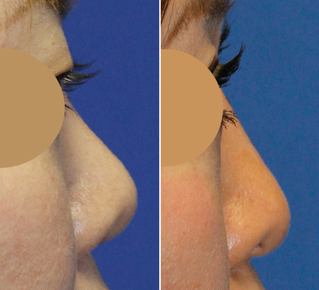 Asian rhinoplasty bridge augmentation profile before and after montage