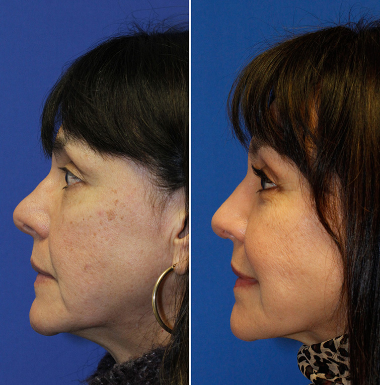 Rhinoplasty to treat upturned bulbous tip