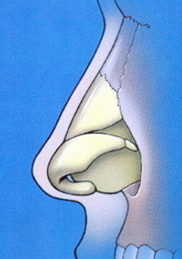 Normal nasal anatomy profile showing bone and cartilage components