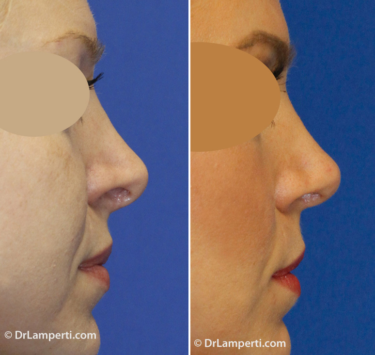 Revision rhinoplasty before and after showing hanging columella and alar retraction repair