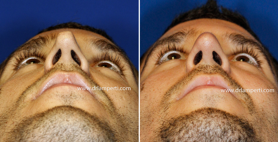 Revision rhinoplasty patient 11 asymmetric nostril repair base view