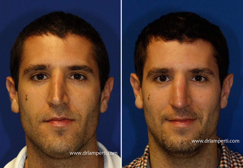 Revision rhinoplasty patient 11 pinched tip repair frontal view