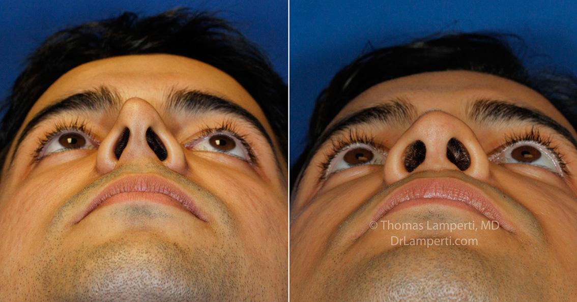 Revision rhinoplasty patient 15 pinched tip repair before and after photos