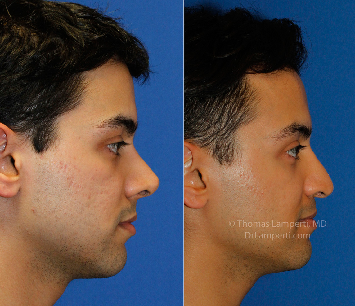 Revision rhinoplasty patient 15 right profile montage before and after photo