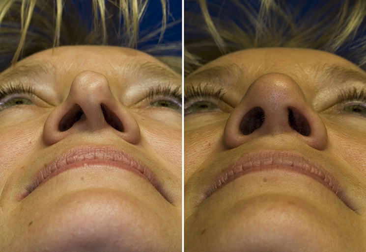 Revision rhinoplasty severe nostril asymmetry repair