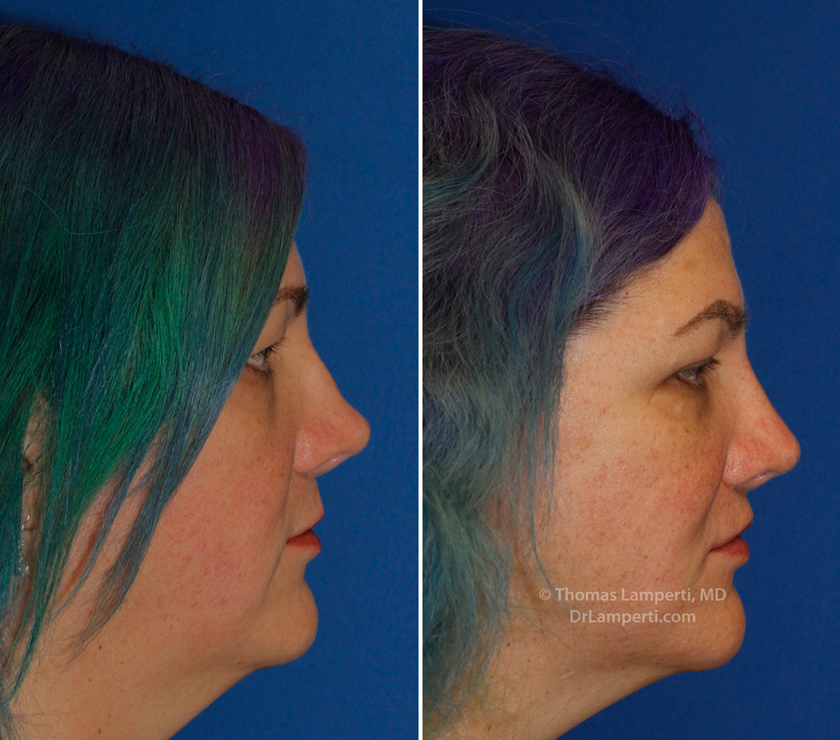 Revision rhinoplasty patient 16 right profile saddle nose repair
