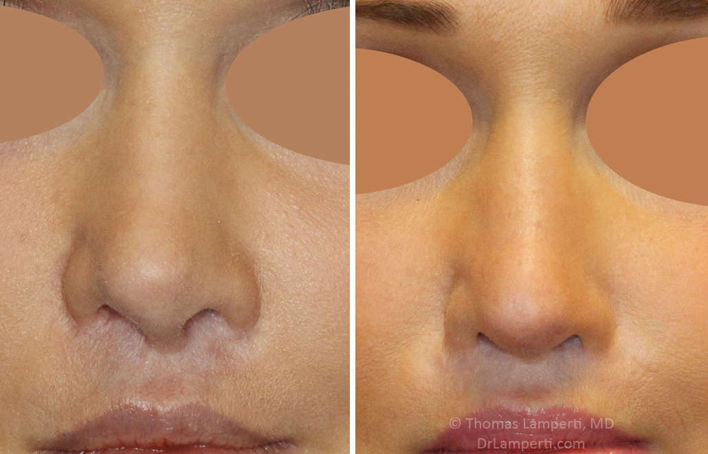 Revision rhinoplasty patient 17 frontal montage