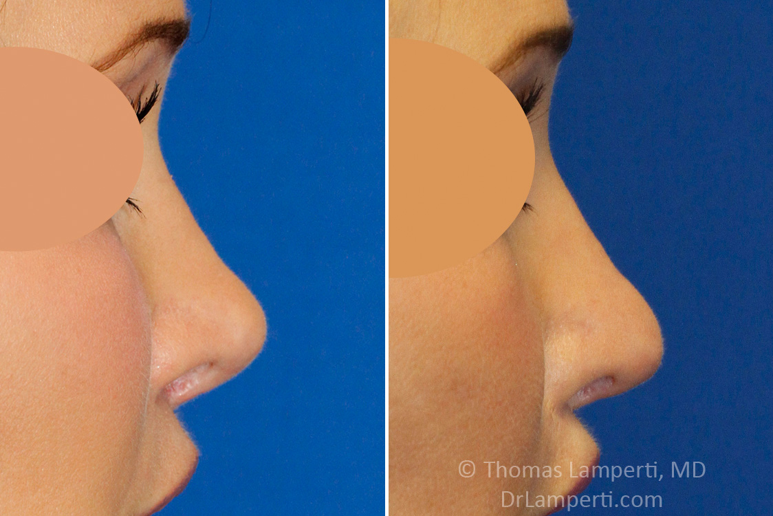 Revision rhinoplasty patient 17 right profile short nose repair