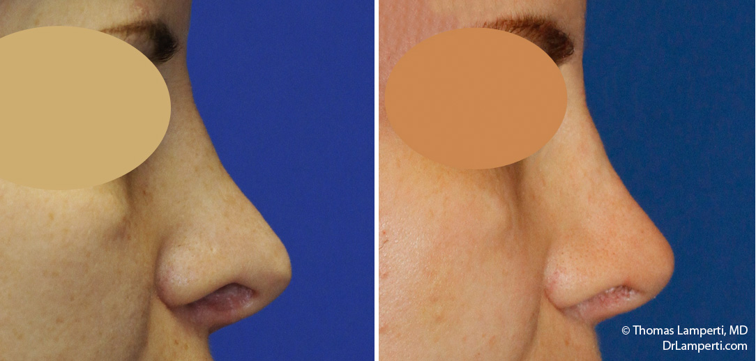 Revision rhinoplasty patient 18 right profile hanging columella pollybeak repair