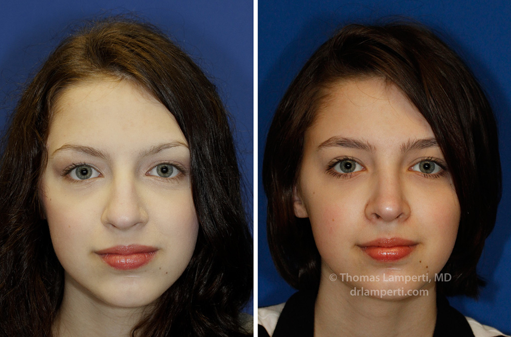 Rhinoplasty patient 45 frontal before and after showing bulbous nose repair