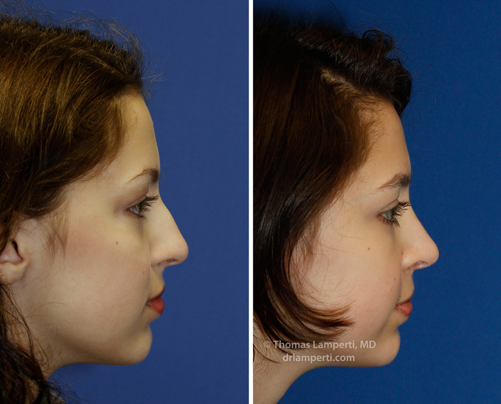 Rhinoplasty patient 45 Right Profile Before and After hump removal