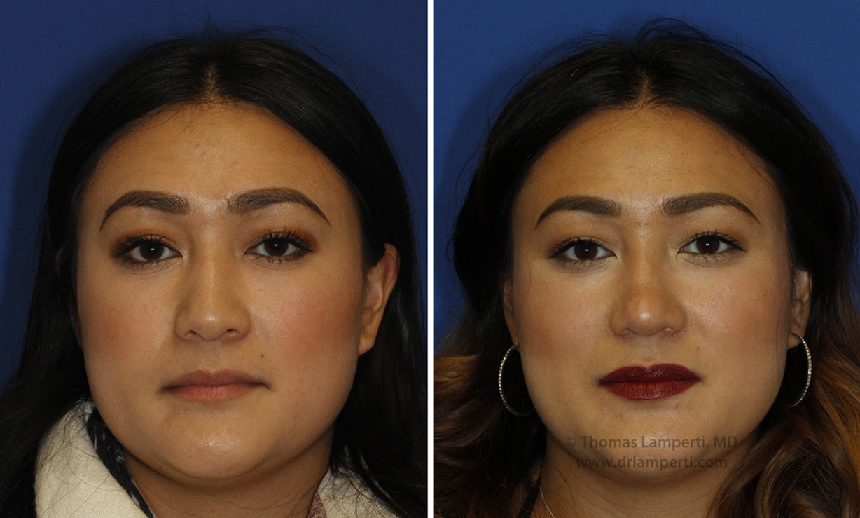 Patient 47 nostril reduction and tip defatting before and after
