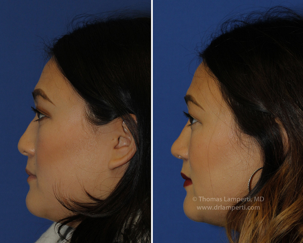 Patient 47 before and after under-projected tip rhinoplasty
