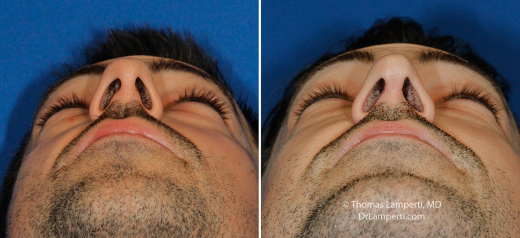 Rhinoplasty patient 52 boxy tip repair base view before and after