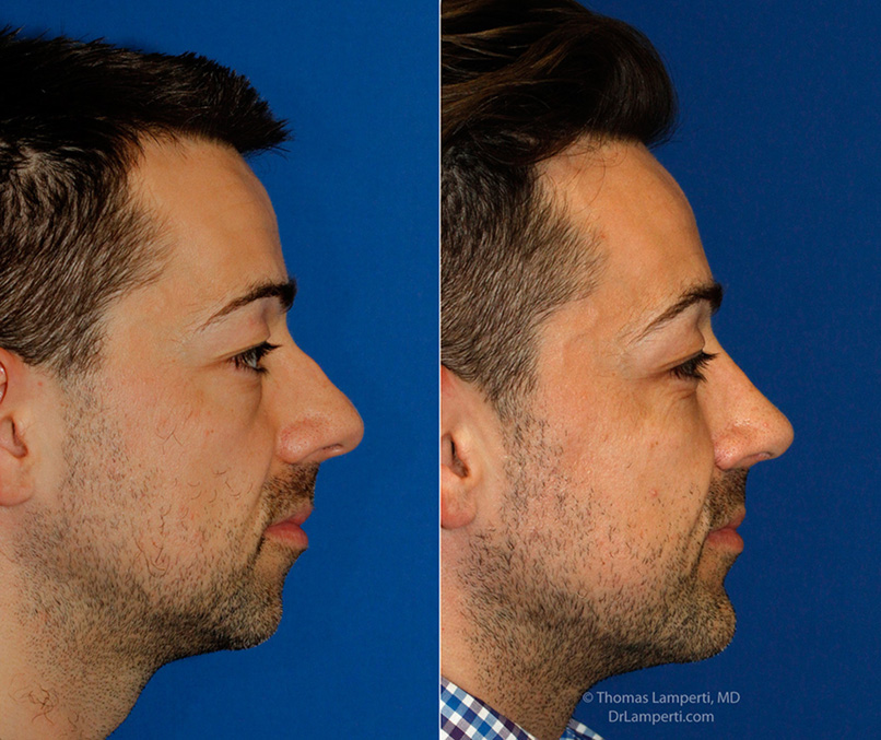 Rhinoplasty patient 52 R profile hump removal