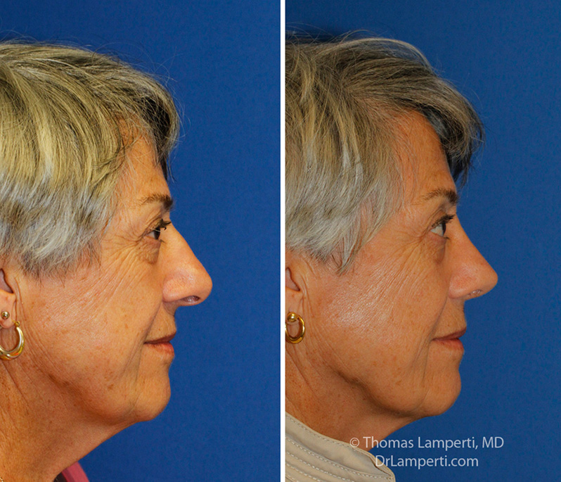 Rhinoplasty patient 56 hanging columella repair before and after