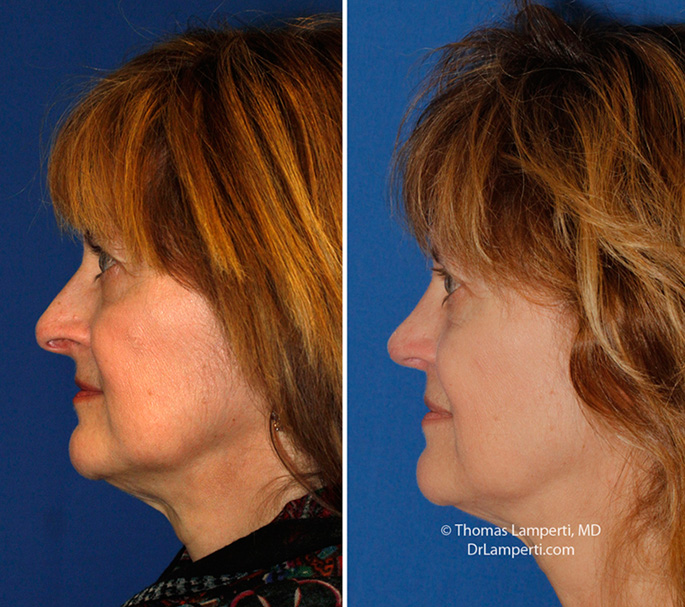 Rhinoplasty patient 59 droopy tip repair left profile before and after montage