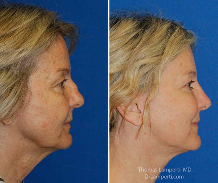 Rhinoplasty 59 R profile saddle nose repair before and after photo
