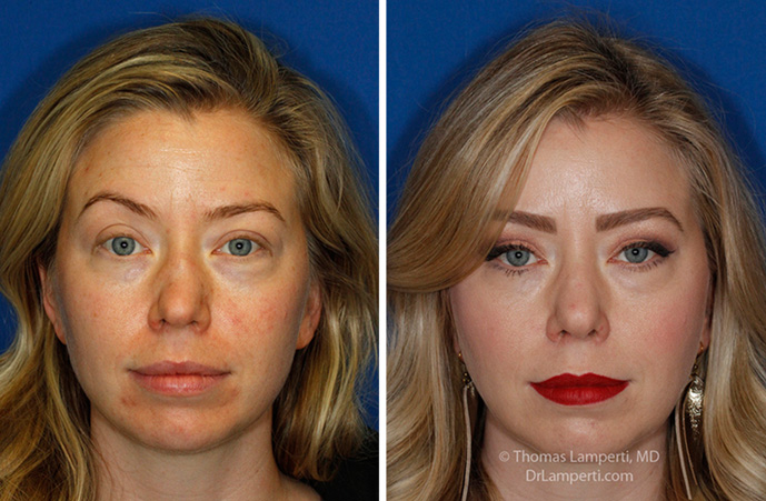 Rhinoplasty patient 63 bbefore and after crooked nose repair motnage