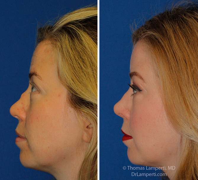 Rhinoplasty patient 63 before and after saddle nose repair profile view