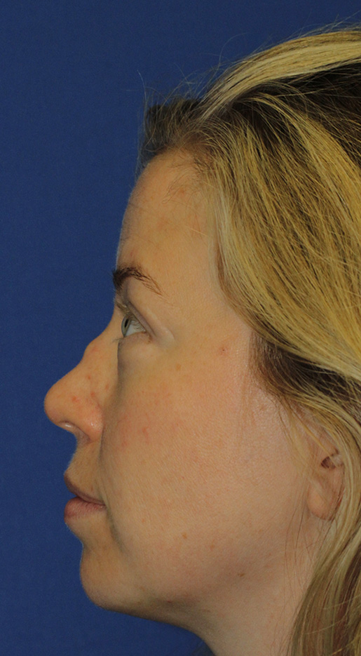 Wegener's saddle nose rhinoplasty patient 63 before left profile