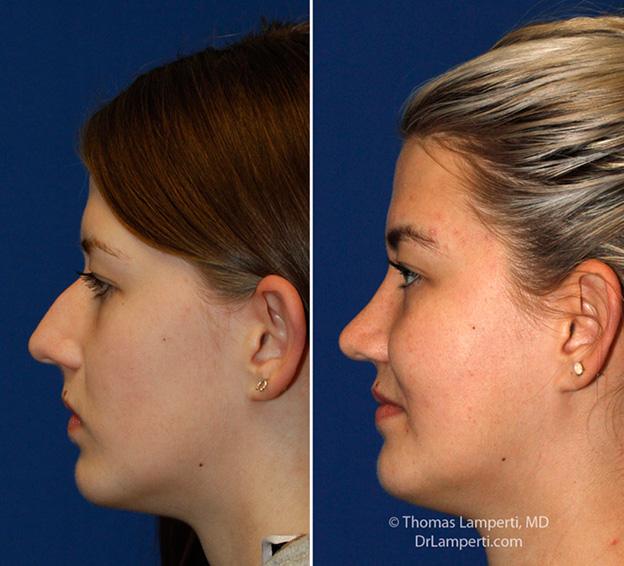 Hump Removal   Rhinoplasty in Seattle   Rhinoplasty Surgeon