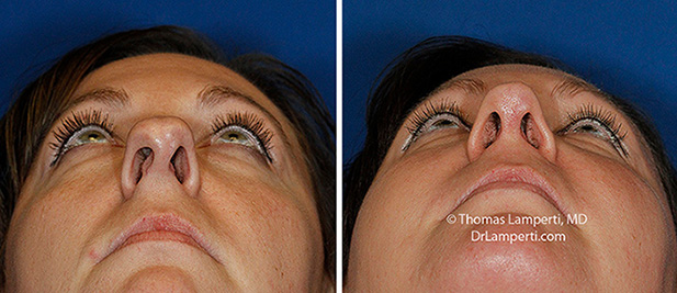 Rhinoplasty patient 67 before and after base view asymmetric nostril repair
