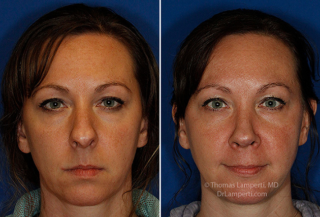 Rhinoplasty patient 67 before and after frontal boxy trapezoidal tip repair