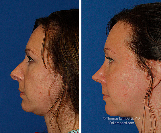Rhinoplasty patient 67 before and after hanging columella repair