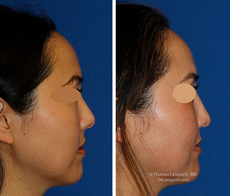 Rhinoplasty patient 69 tip derotation before and after montage