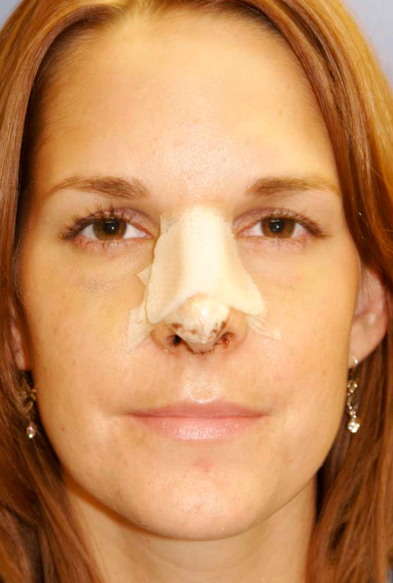 Rhinoplasty Cast