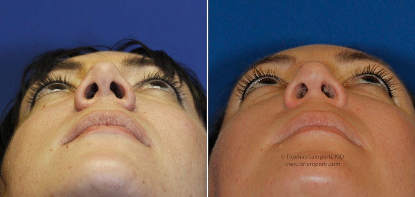 rhinoplasty-patient-46-nostril reduction photo