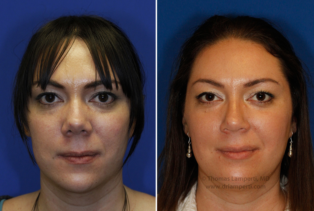 rhinoplasty patient 46 nostril and bridge narrowing in patient with upturned tip