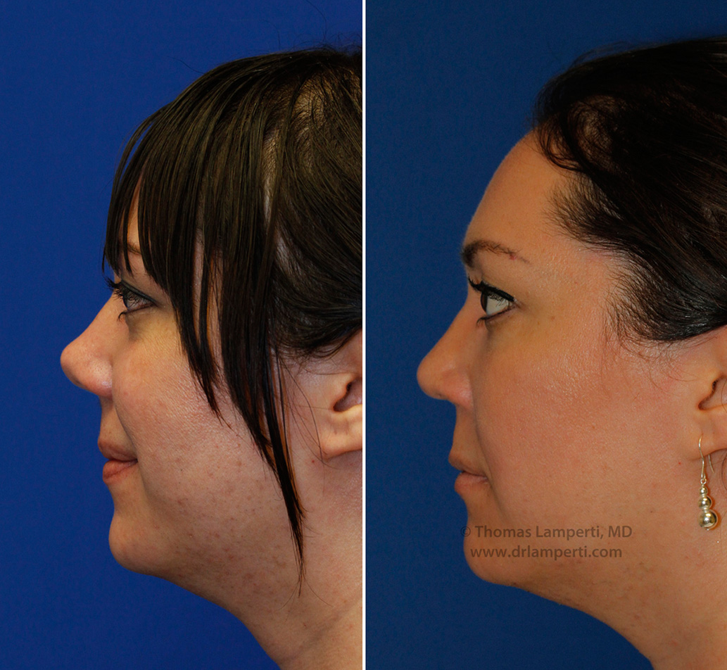rhinoplasty patient 46 upturned tip repair