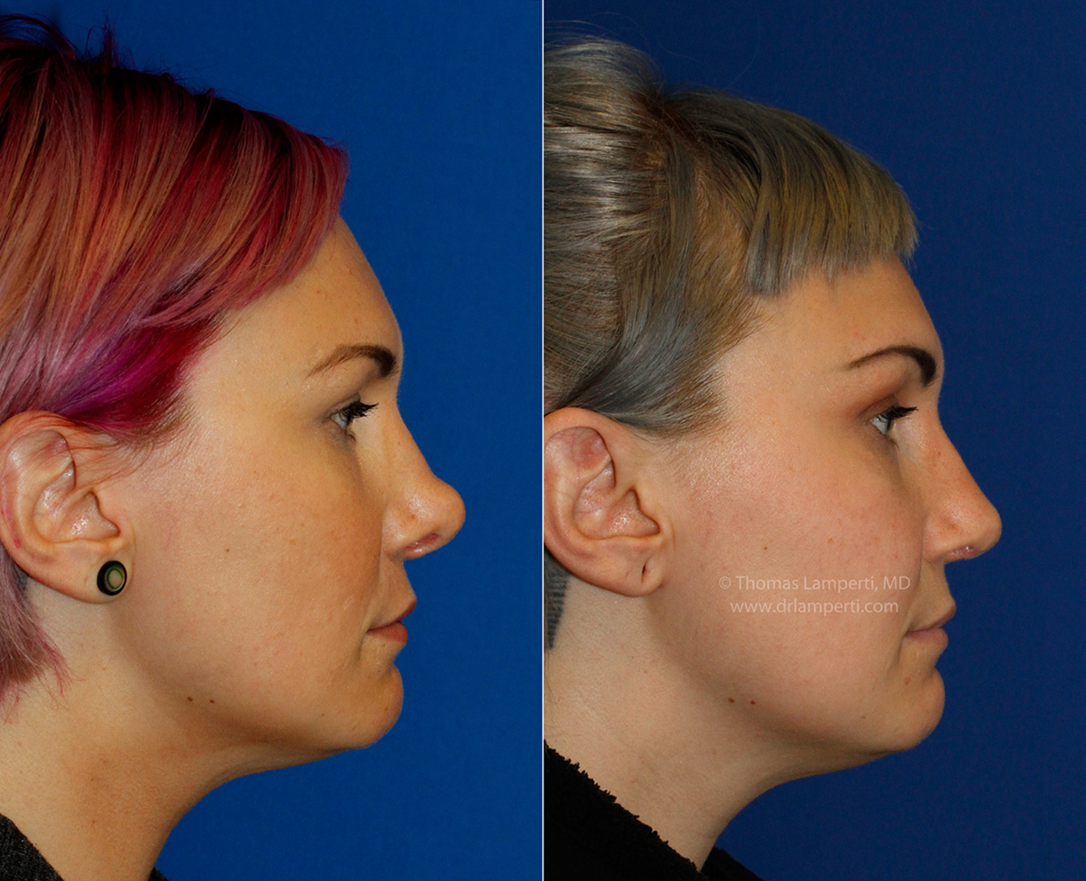 Revision rhinoplasty patient 14 profile before and after photos
