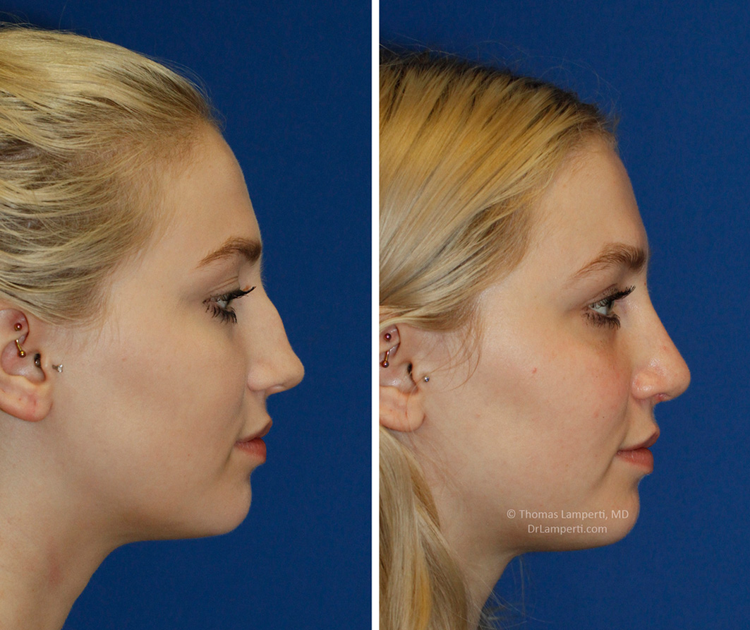 Rhinoplasty patient 54 saddle nose repair