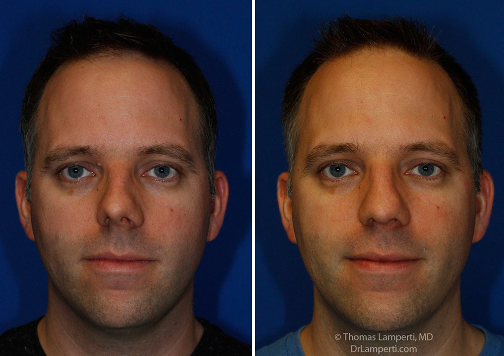 Rhinoplasty patient 55 crooked nose repair frontal