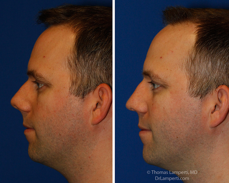 rhinoplasty patient 55 L profile upturned tip repair
