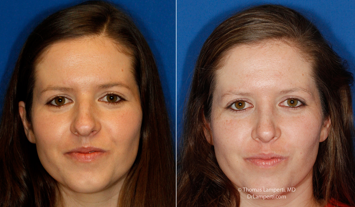 Rhinoplasty patient 60 boxy tip repair before and after photos