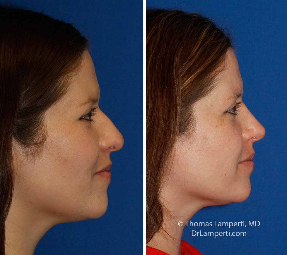 Rhinoplasty patient 60 hanging columellar repair