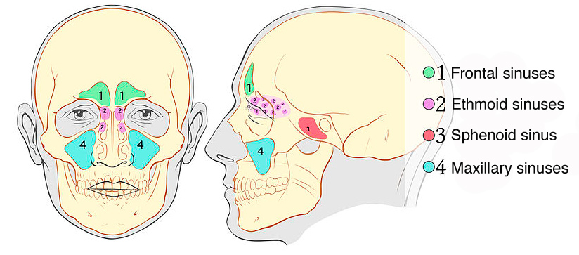 Schematic of paranasal sinuses on frontal and profile view with maxillary, frontal, ethmoid and sphenoid sinuses labelled. Image courtesy of Michał Komorniczak, MD - medical illustrations - Poland