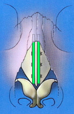 Frontal schematic of spreader grafts