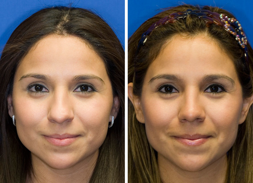 Hispanic woman with bulbous tip rhinoplasty before and after photos